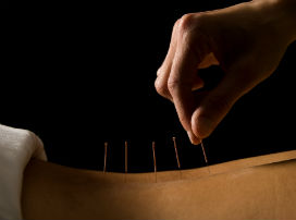 acupuncture chinese medicine